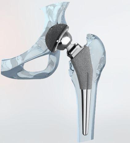 ¿Pueden la Células Madre prevenir la necesidad de Cirugía de Prótesis (Artroplastia) de Rodilla o Cadera en la Artrosis? El hilo conductor que subyace detrás de toda la investigación sobrecélulas…