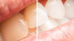 Lopsided Sensitive Teeth Hydrogen Peroxide #Dental…