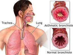 Bronkitis Kronis merupakan suatu penyakit dimana terjadi gangguan pernapasan selaput lendir pada saluran bronkial paru-paru terinfeksi peradangan. Selaput lendir menjadi membengkak dan tumbuh lebih tebal, peradangan tersebut menyempit sehingga mengakibatkan saluran udara kecil di paru-paru menjadi tertutup, oleh karena itu penderita peradangan pernapasan ini mengalami batuk yang dapat disertai dengan dahak dan sesak napas.