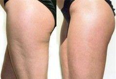 Dieta contro la Cellulite