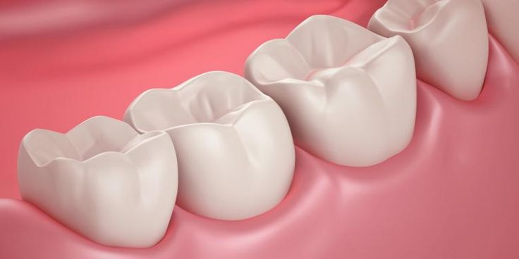 Wisdom teeth that grow sideways or abnormal, should be lifted. Because this can interfere with the process of cleaning the teeth, causing retention of food, and encourage teeth in front of the other. However, for diagnosis, should be seen immediately by a dentist clinically. http://medicaphar.com/is-it-okay-if-the-tooth-pain-patched-permanently/