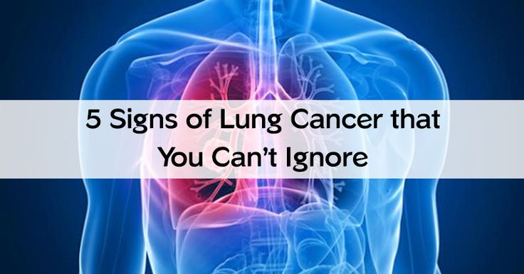 Are you experiencing any of these lung cancer symptoms? Make sure you have them checked out to make sure you stay safe and cancer-free.