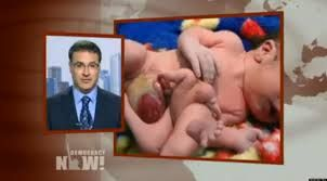 birth defects from depleted Uranium use in Iraq depleted uranium bullets etc. were used in Iraq by the USA