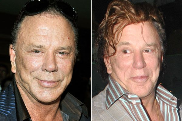 Mickey Rourke Before And After - Bad Celebrity Plastic Surgery