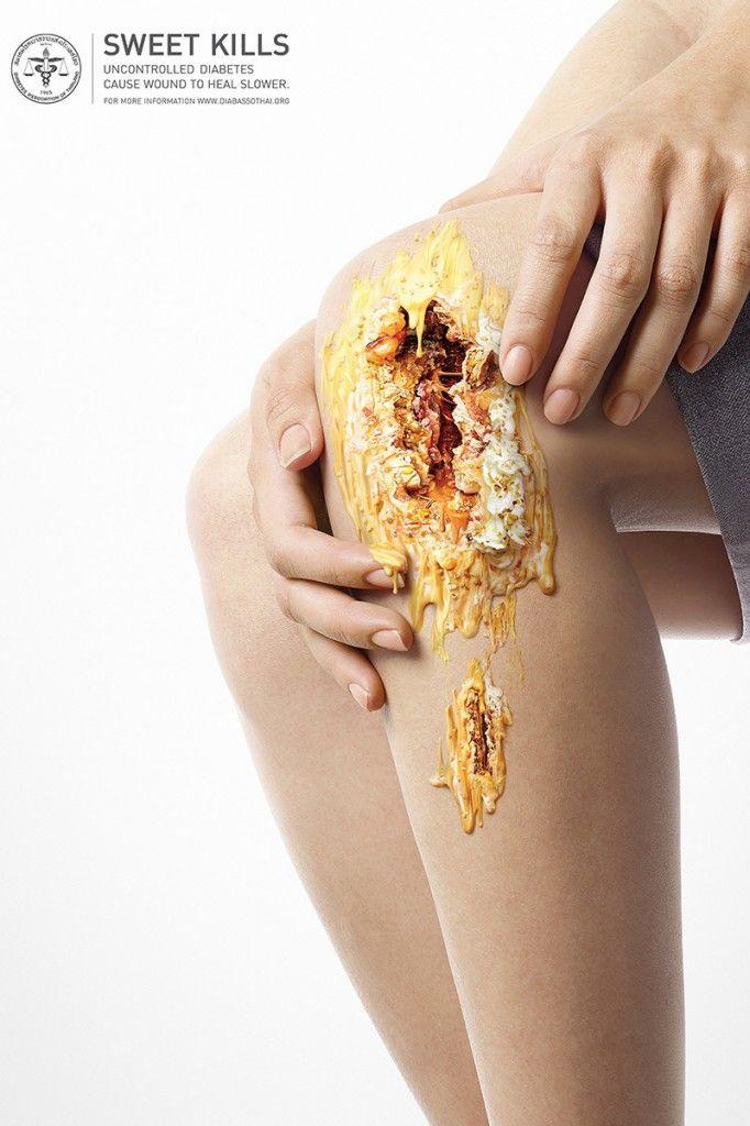 スイーツはあなたの細胞を破壊します。糖尿病の怖さを描いた衝撃的なクリエイティブ | AdGang