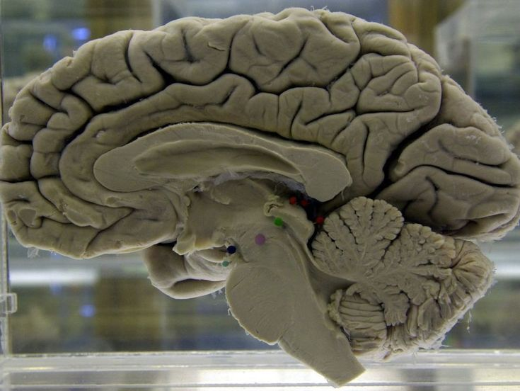 Study looks at link between brain injuries and dementia