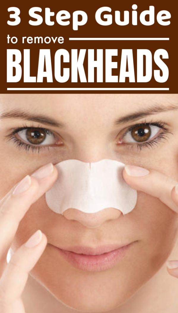 Follow this 3 step guide and get blackheads-pimple free smooth skin instantly