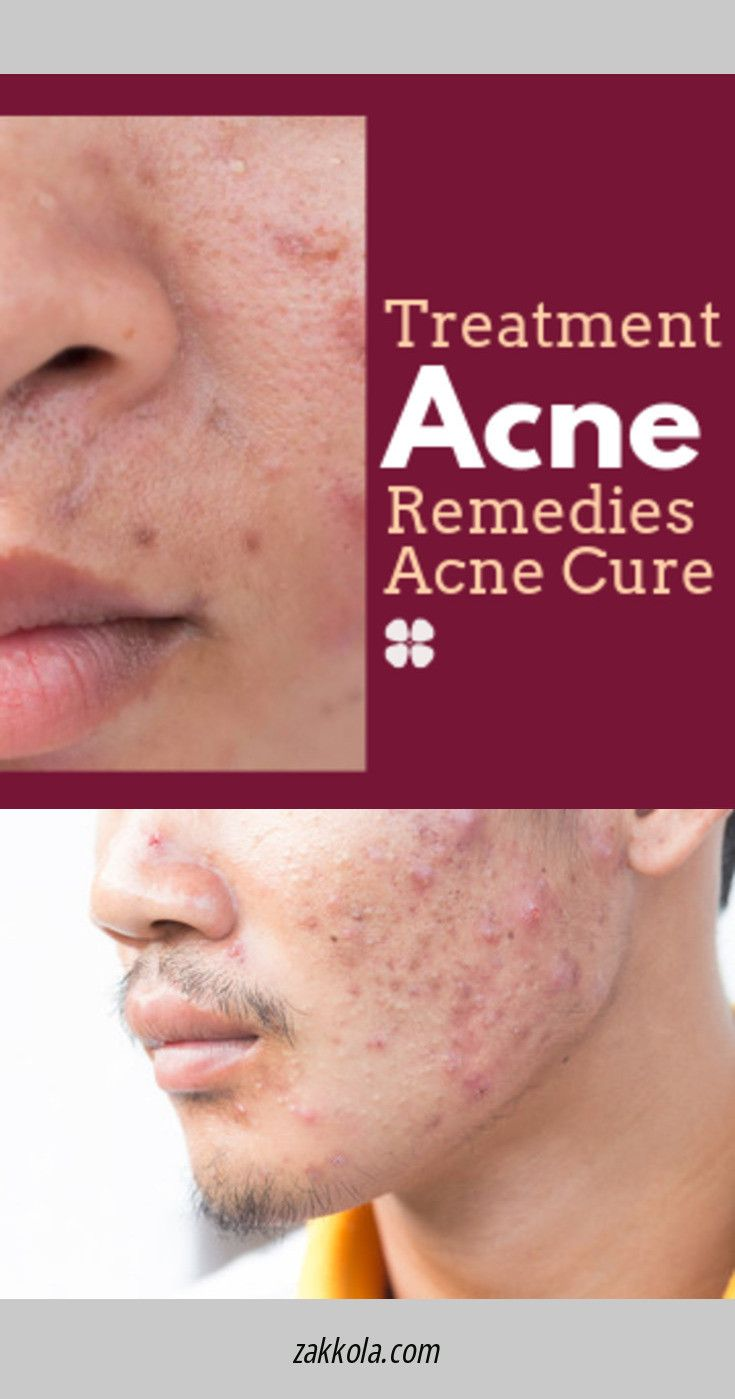 How To Get Rid Of Acne Overnight Fast Home Remedy To Get Rid Of