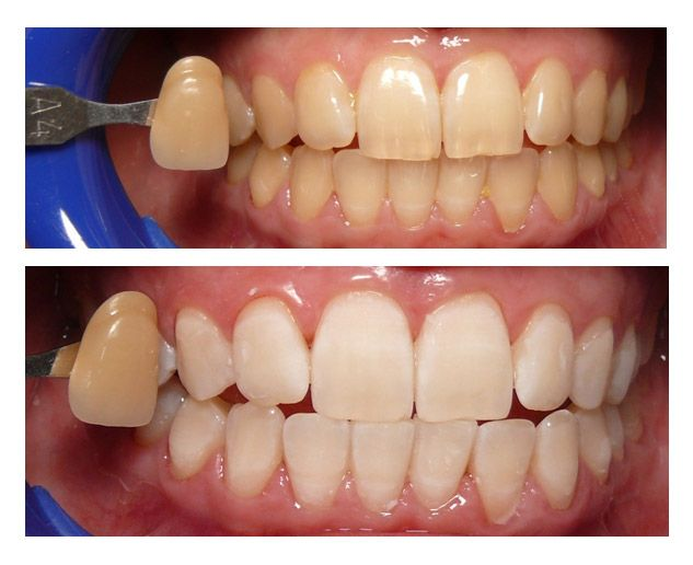 Whitening / Bleaching Teeth http://reviewscircle.com/health-fitness/dental-health/natural-teeth-whitening