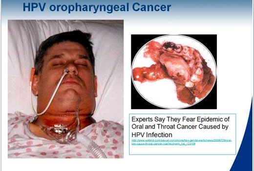 Throat cancer hpv oral sex