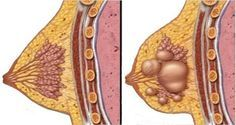 Breast cysts are fluid-filled sacs within your breast, which are usually not cancer (benign).This kind of breast cysts affects middle-aged women as result of stressful life. Women with breast cysts should get enough vitamins especially vitamin D and to avoid caffeinated beverages or alcohol. Even though breast-cysts are harmless doctors are against their removal so […]