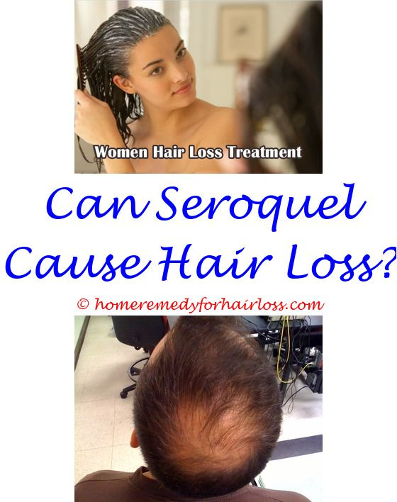 17 best Female Hair Loss images on Pinterest | Alopecia hair loss ...