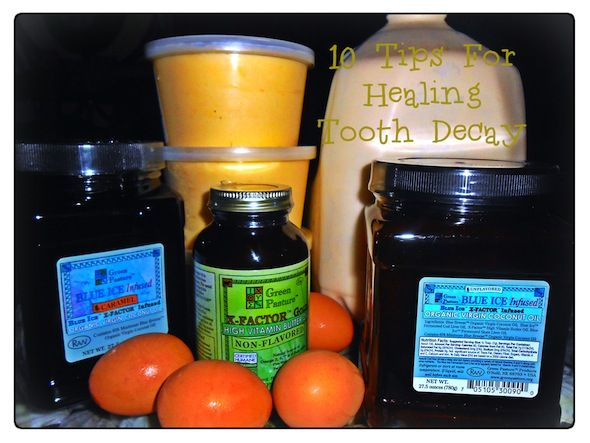 Post image for 10 Tips for Healing Tooth Decay from Nourishing Time