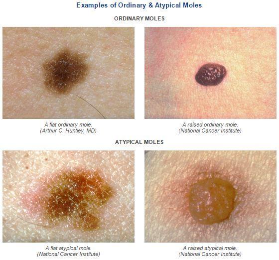 Raised skin moles