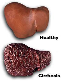 Which liver would you rather have?  http://zackwvan.hubpages.com/hub/Alcoholism-What-is-it-Worth