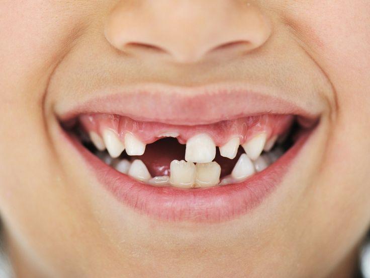Quand la magie a fait son temps et que ton enfant ne croit plus à la fée des dents... #churchanddwight #ad