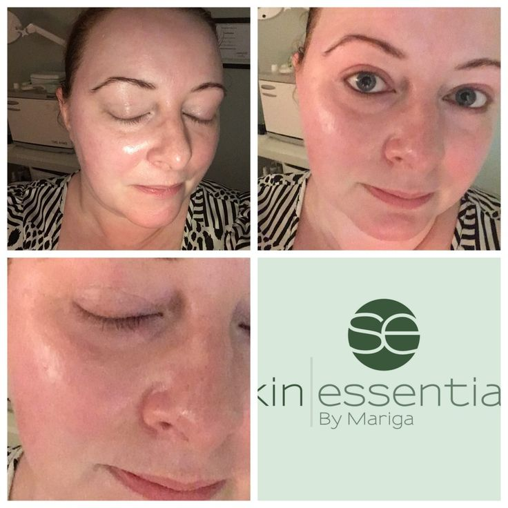 Our signature sculpting massage combined with precious natural oils and butters gives you a deeply relaxing treatment with powerful skin-boosting results. Exclusive to our Wexford clinic.