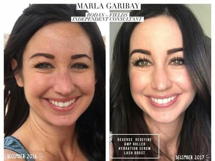 Reverse and AMP MD roller results. Amazing skin results! Fix uneven skin tone. Brighten complexion. Make your skin glow. Active Hydration Serum. Lash Boost results. | Rodan and Fields |