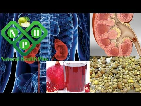 6 Best Herbal Remedies For Kidney Stones   How To Remove Kidney Stones At Home - YouTube