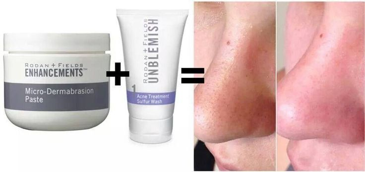 How To Get Rid Of Blackheads Use Unblemish Sulfur Wash
