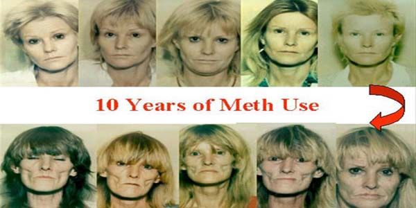methamphetamine addiction effects and treatments Meth addiction and treatment side effects of crystal meth use and abuse crystal meth is the common name for a colorless, odorless form of d-methamphetamine.