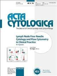 Lymph Node Fine-needle Cytology and Flow Cytometry in Clinical Practice: An Update. Special Topic Issue: Acta Cytologica 2016 No. 4 Paperback ? Import 21 Oct 2016