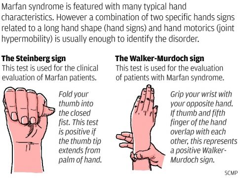 Thumb  Wrist Signs Associated with Marfan syndrome