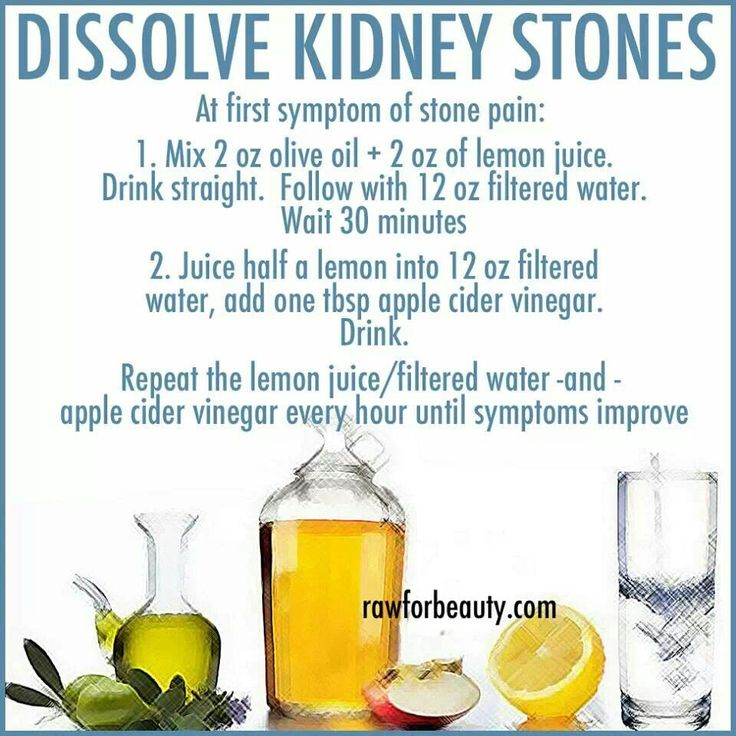 Kidney Stones on kidney stone path