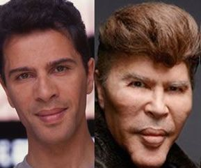 Was actors without facial surgeries any dialogue