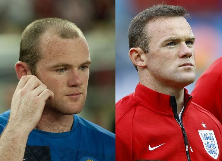 """Wayne Rooney hair transplant: Man United striker in headlines again over op. LOOKS like Wayne Rooney is in the headlines again over his hair restoration op.  But the Man United striker can join in the joke this time as the bloody stubble trouble is being inflicted on a Wayne double. During the eight-hour op hairs from the back of the head were planted like seeds at the front. Team-mate Rio Ferdinand told him: """"You'll be doing Head & Shoulder adverts soon."""""""