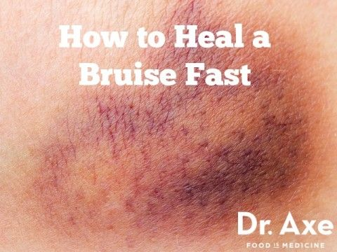 How to Heal Bruises Fast - DrAxe.com - http://draxe.com/heal-bruises-fast/