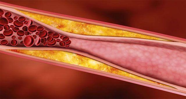 Előzd meg az agyvérzést! Tisztítsd meg artériáidat ezzel a 3 természetes összetevővel - Megelőzés - Test és Lélek - www.kiskegyed.hu