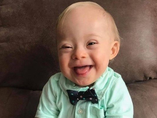 """New 'Gerber Baby' Has Down Syndrome  