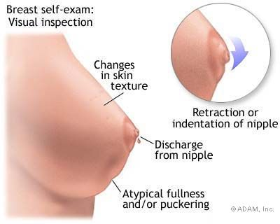 Symptom of breast cancer, be aware! #breastcavery