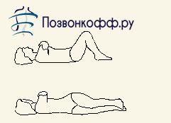 упражнения после удаления межпозвоночной грыжи