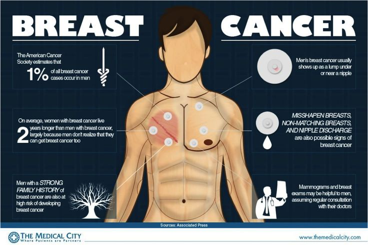 male breast cancer: