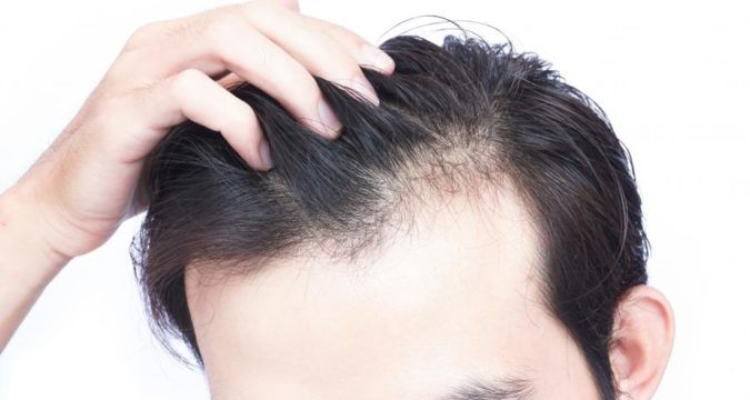 Some Hair Loss Factors Treat Hair Loss Stop Hair Loss Regrow Hair Naturally