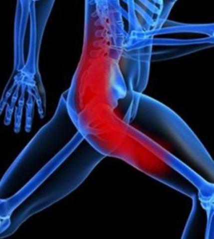 Combattere le infiammazioni del nervo sciatico con i rimedi naturali - Ambiente Bio