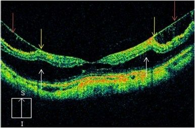 "Big Market Research added new report ""Optical Coherence Tomography (OCT) Market Outlook (2014-2022)"" Size, Share, Industry Trends.Visit for more info @ http://www.bigmarketresearch.com/global-optical-coherence-tomography-oct-outlook-2014-2022-market Optical Coherence Tomography (OCT) Market is segmented based on the technology, device types and region. Depending on the Technology, the Optical Coherence Tomography (OCT) ."