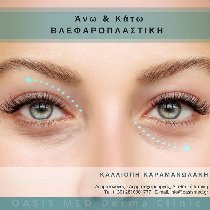 """Άνω & Κάτω #Βλεφαροπλαστική: ♯ Το """"κλειδί"""" για τέλειο βλέμμα!!! ♯ - - - - - - - - •• Νέες τεχνικές, Διακριτικό αποτέλεσμα! •• - - - - - - - - - -  Upper & Lower Eyelid #Blepharoplasty: Get a fresh new look!  ⇢ ΠΕΡΙΣΣΟΤΕΡΑ ΕΔΩ:⚕https://dermaclinic.oasismed.gr/el/epikoinwnia ☎(+30) 2810301777 📧info@oasismed.gr . #δερματολόγος #Αισθητική #Ιατρική #δερματολογικό #κρήτη #ηράκλειο #χανιά #ρέθυμνο #άγιοςνικολαος"""