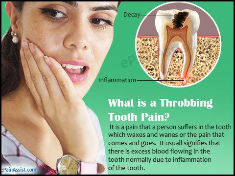 Image from http://www.epainassist.com/images/throbbing-teeth-pain.jpg.