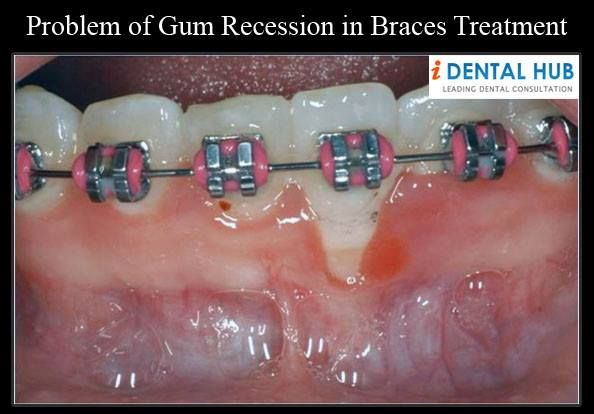 Problem of Gum Recession in Braces Treatment | Dental Care ...  Problem of Gum ...