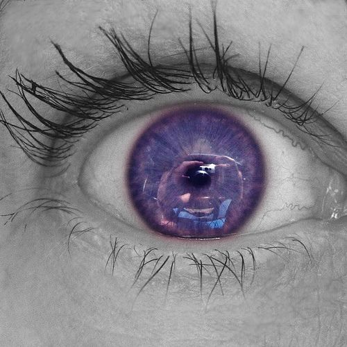 "also known as ""violet eyes"" (a mutation). When someone is born with Alexandria's Genesis, his eyes are blue or gray at birth.After six months, the eyes begin to change their original color to purple"