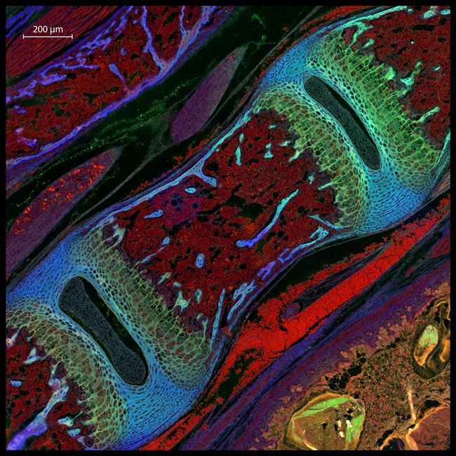 13th Prize, 2013 Nikon Small World microscopic photography contest