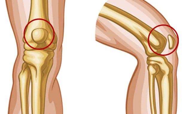 8 απλές ασκήσεις για να ανακουφιστείτε από τον πόνο στα γόνατα