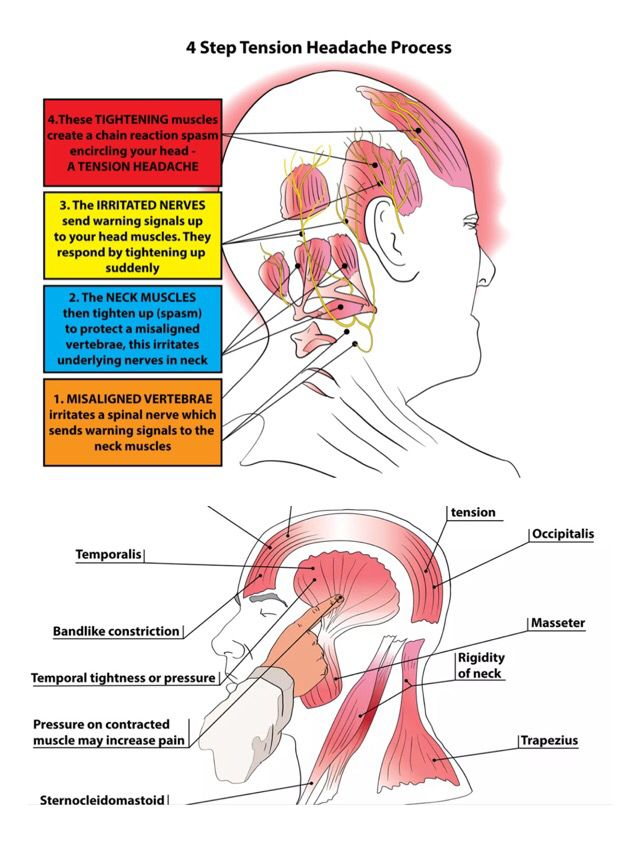 TRIGGER POINT THERAPY - TENSION TYPE HEADACHES (TTH)