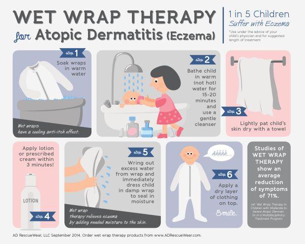 How to Wet Wrap Eczema