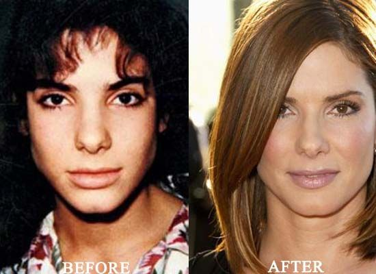 8 plastic surgery: Sandra Bullock Plastic Surgery Before and After Nose Job and Botox Injections