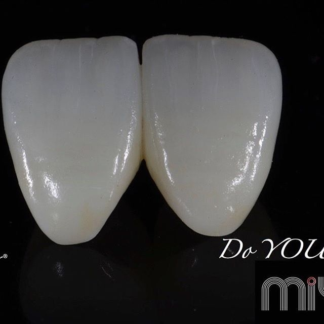 These Are Two Anterior Solid Zirconia Restorations Without Ceramic We Only Used Miyo From Jensen Dental Miyo Make It Your Ow Dental Ceramics Natural Teeth