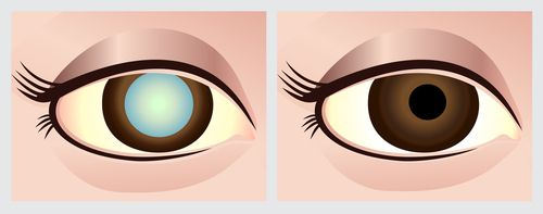 cataratas ojos borrosidad